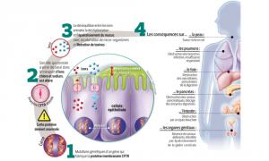 Phénotype de la maladie mucoviscidose1-300x180